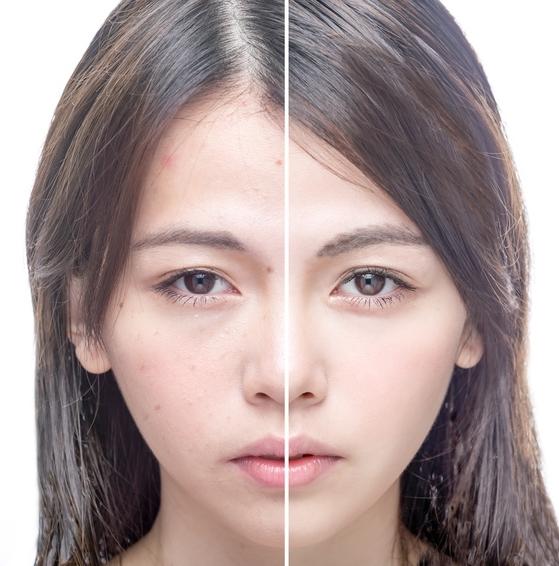 Anwendung von Arganöl im Gesicht